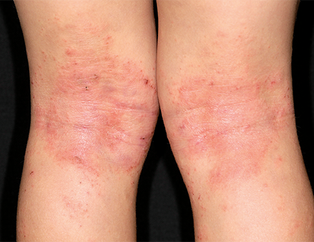 Atopic eczema