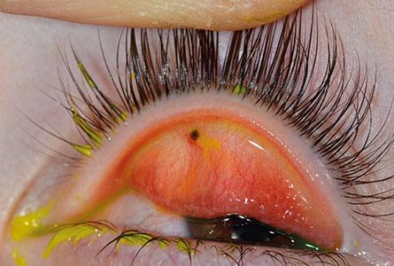 Foreign body eyelid