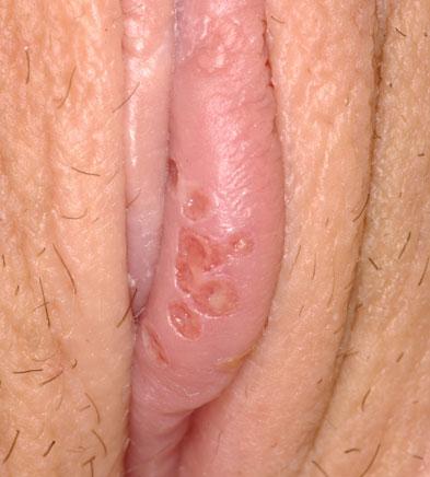 Herpes simplex female