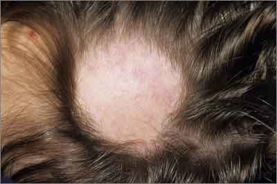 Alopecia areata: localised hair loss may have an autoimmune cause (SPL)