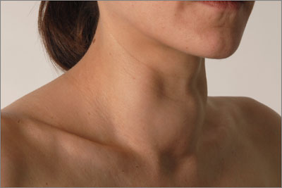 Large goitre may be a reason to consider total thyroidectomy