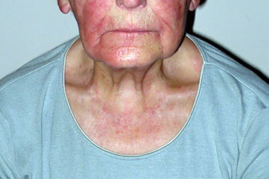 Pictorial case studies: Skin conditions